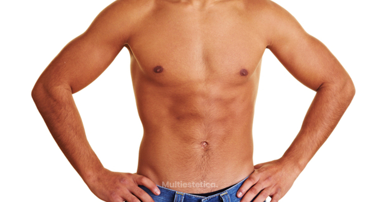 Reducción de ginecomastia: resuelve todas tus dudas