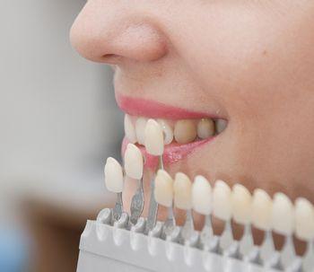Todo sobre las prótesis dentales