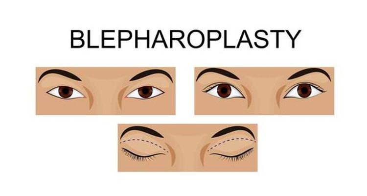 ¿En qué consiste la blefaroplastia superior?