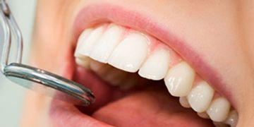 Tipos y Cuidados para la reconstrucción dental