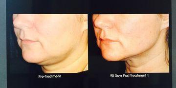 Ultherapy, el lifting facial y corporal sin cirugía