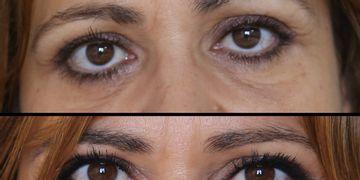 La cirugía oculofacial, especialistas en rejuvenecimiento periocular