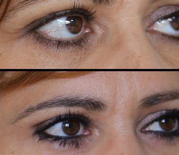 Cómo rejuvenecer el rostro sin que quede artificial