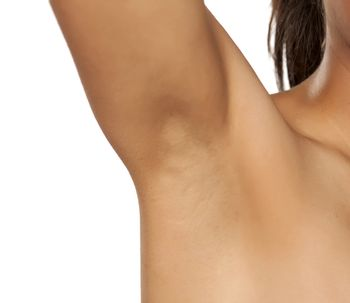 Hiperhidrosis solucion definitiva con thermidry