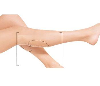 Reducción de pantorrilla: una cirugía en auge