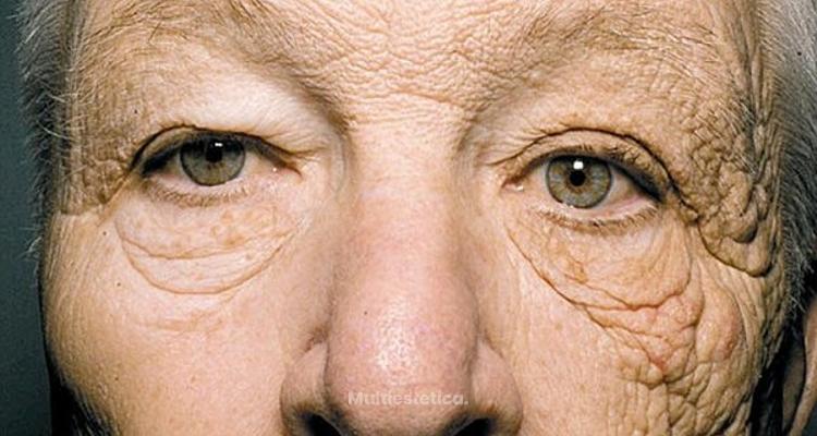 La aparición de arrugas en la piel a causa del sol