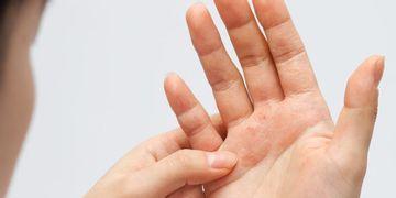 Psoriasis: una enfermedad que afecta física y psicológicamente