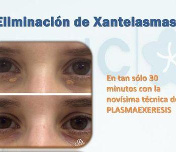 Párpados más jóvenes ahora sin cirugía: Plasma láser (Plexr)