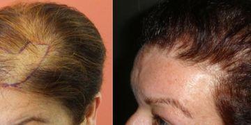 La alopecia en la mujer, ¿un problema sin solución?