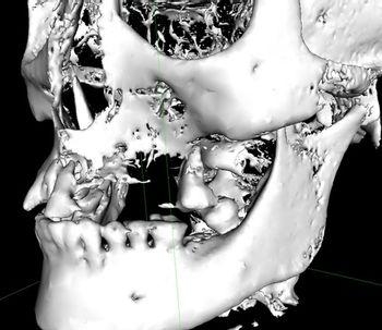 Falta de hueso para la colocación de implantes ¿Qué es la elevación de seno maxilar?