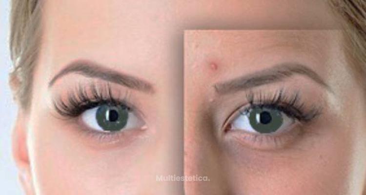 Las claves del acné