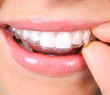 No hay edad para ponerse ortodoncia
