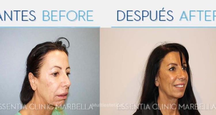 Lifting Facial sin cirugía, Lifting facial sin cicatriz