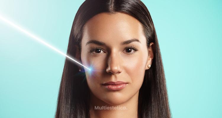 Eliminación de Xantelasmas con laser ErbioYAG sin cirugía