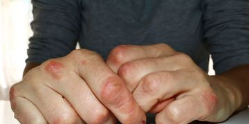 El sol: un aliado para las personas con psoriasis