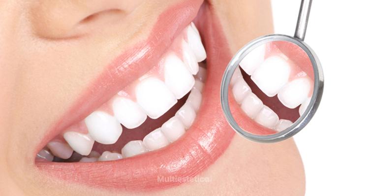 ¿Te da vergüenza enseñar los dientes ¡Ponte unas carillas dentales!