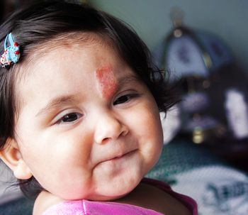 Lesiones vasculares infantiles: los hemangiomas