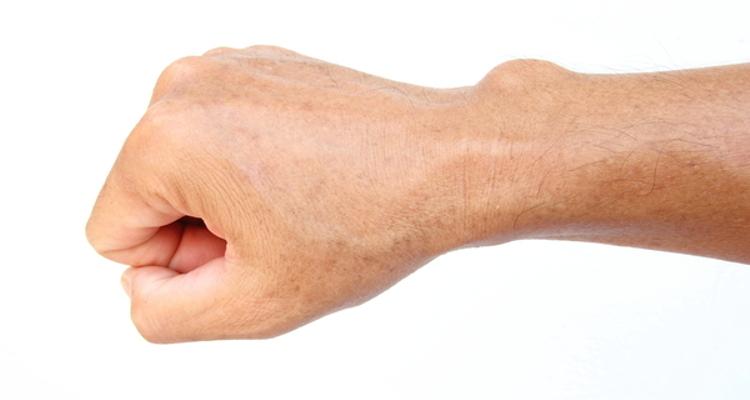 Quistes sebáceos y lipomas: eliminación con láser y mínima incisión