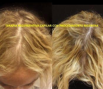 Células madre y alopecia