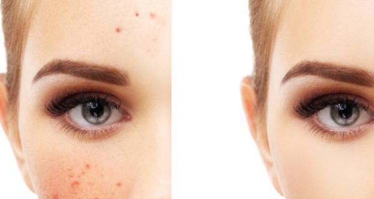 Clearlight, un método rápido y eficaz contra el acné