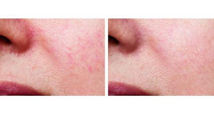 Eliminar el enrojecimiento facial es posible