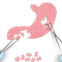 Método POSE: Reducción de estómago sin incisiones