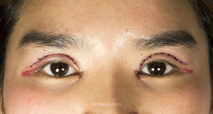 Tipos de blefaroplastia