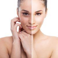 Todo lo que necesitas saber sobre el acné