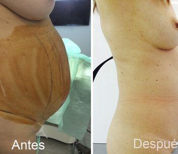 El Vaser Lipo: la alternativa perfecta a la liposucción tradicional