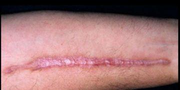 Corrección de cicatrices