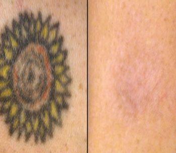 Como eliminar los Tatuajes
