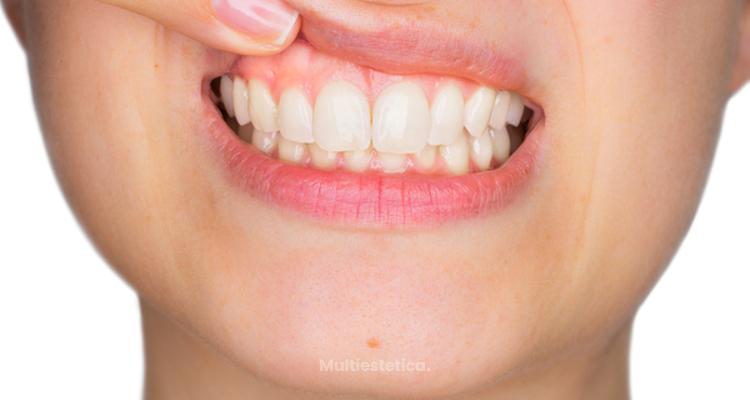 Cómo tratar la sonrisa gingival