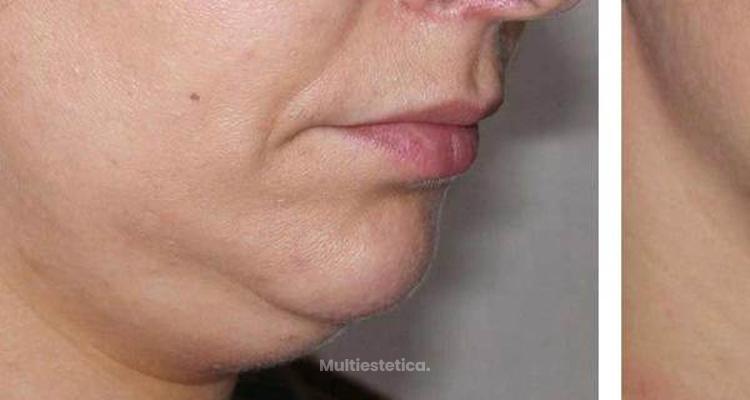 Quieres eliminar la inestética PAPADA, sin cirugía?