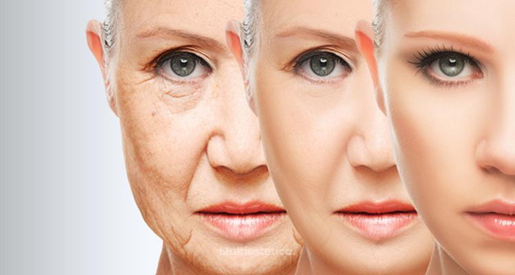 Rejuvenecimiento facial, lifting sin cirugía