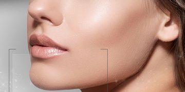 La mentoplastia, cirugía de moda en EEUU