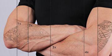 Las razones laborales son el principal motivo para eliminar tatuajes
