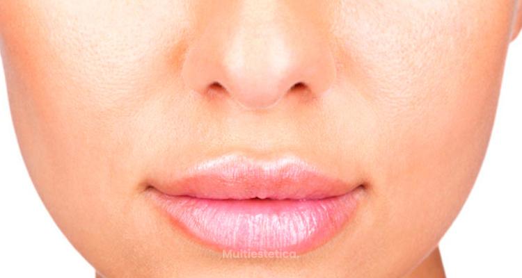 Mejora tus labios con ácido hialurónico