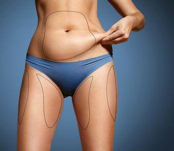 Cómo es la liposucción safeLipo