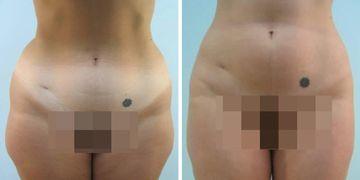 Liposucción: Las 10 verdades que más sorprenden en la primera consulta