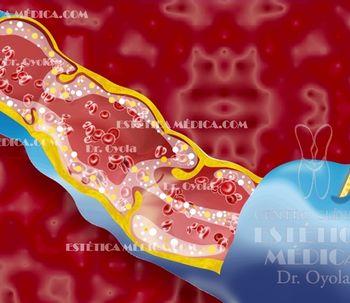El Dr. Oyola, pionero en realizar la Fleboterapia Regenerativa en España