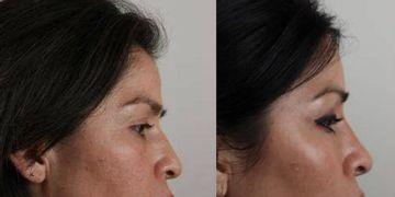 La rinomodelación, un avance en estética de la nariz