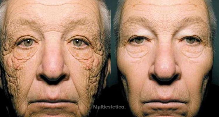 Dermatoheliosis unilateral: arrugas solares irreversibles