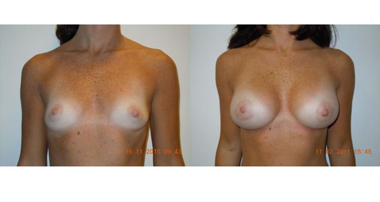 La verdadera operación bikini: desmontar los tópicos sobre el aumento de pecho en verano