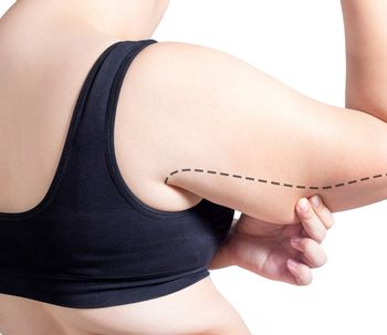 ¿Es la liposucción del brazo tan efectiva como la braquioplastia?