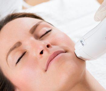 El efecto paradójico en la depilación láser facial
