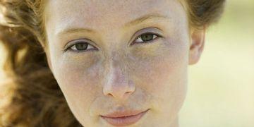 Sol, cambios hormonales y edad, causantes de las manchas en la piel