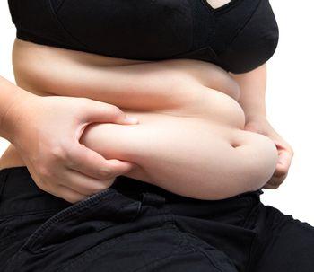 Cirugía posbariátrica para eliminar el exceso de piel tras la pérdida de peso