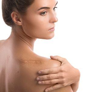 Células madre o PRP, tratamientos eficaces para las cicatrices