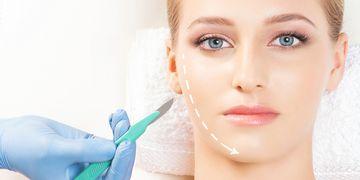 Adelgazamiento facial gracias a la bichectomía