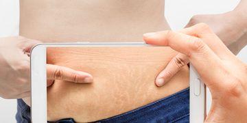 ¿Qué tratamiento para las estrías es eficaz?